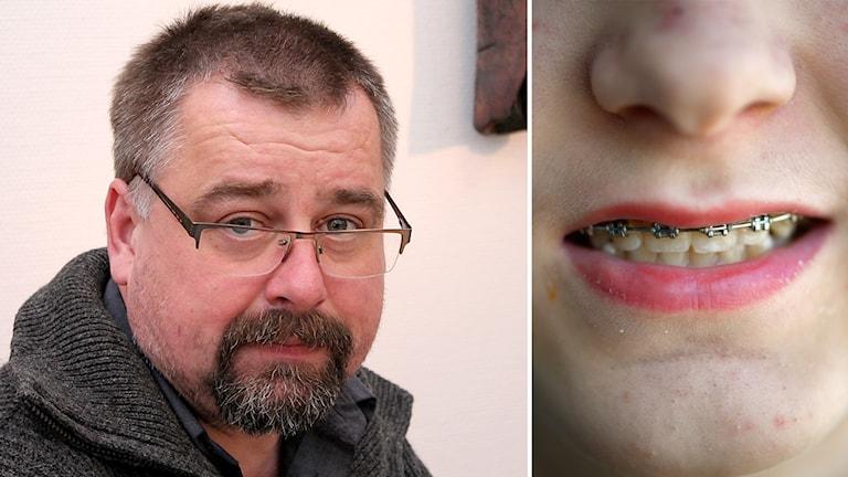 Jens Söder och tandställning